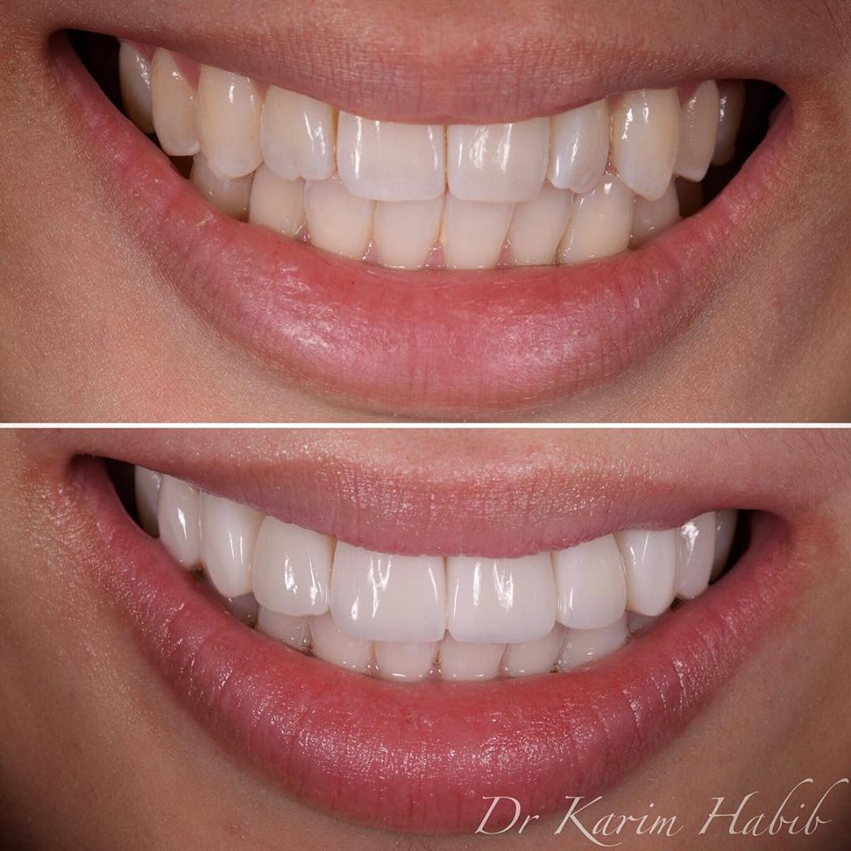 Natural looking composite veneers by Dr Karim Habib