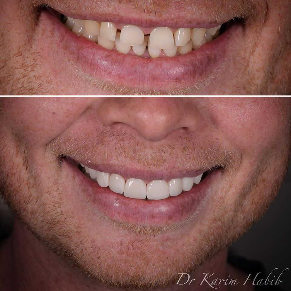 Veneers Smile makeover Sydney