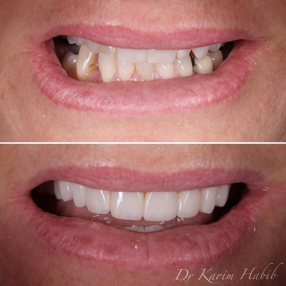 Sydney composite resin veneers