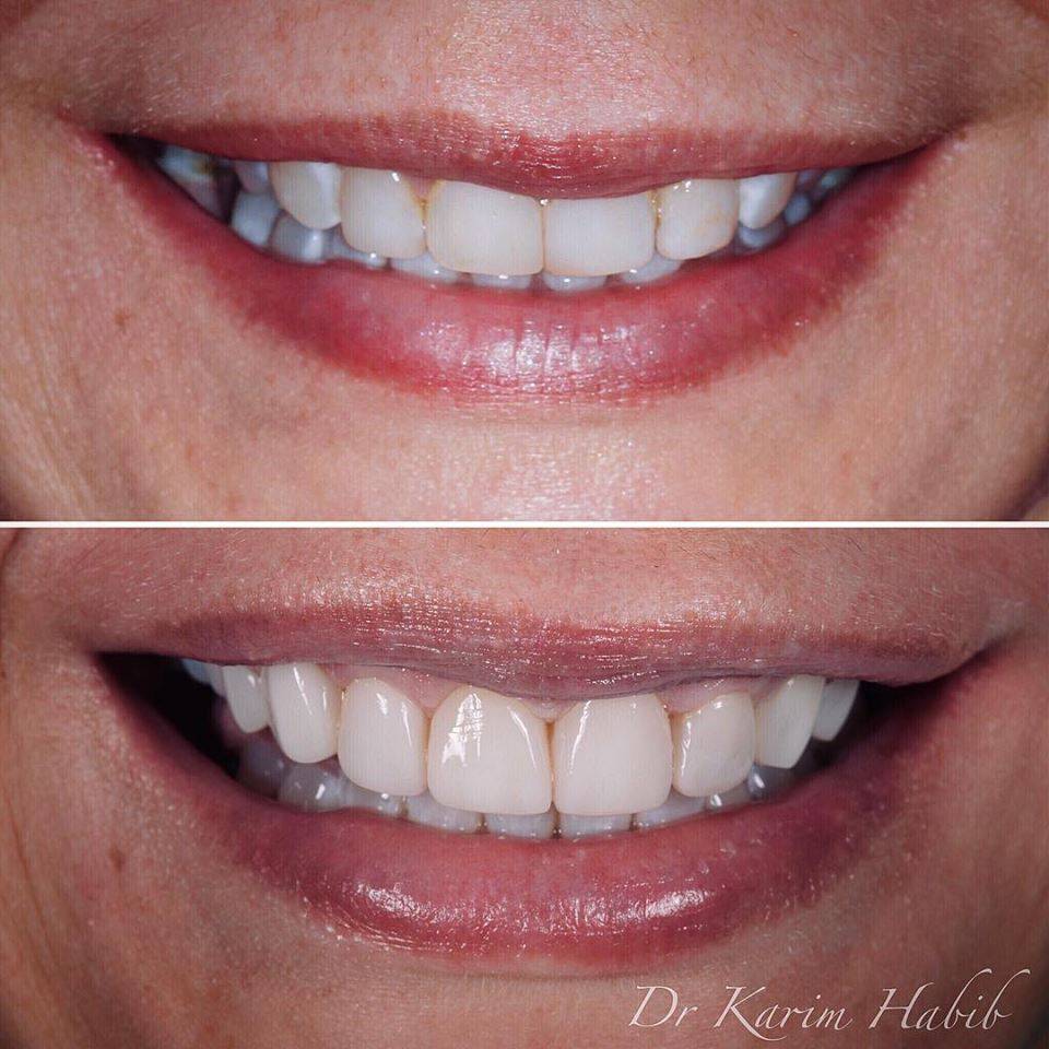 Dental veneers Sydney