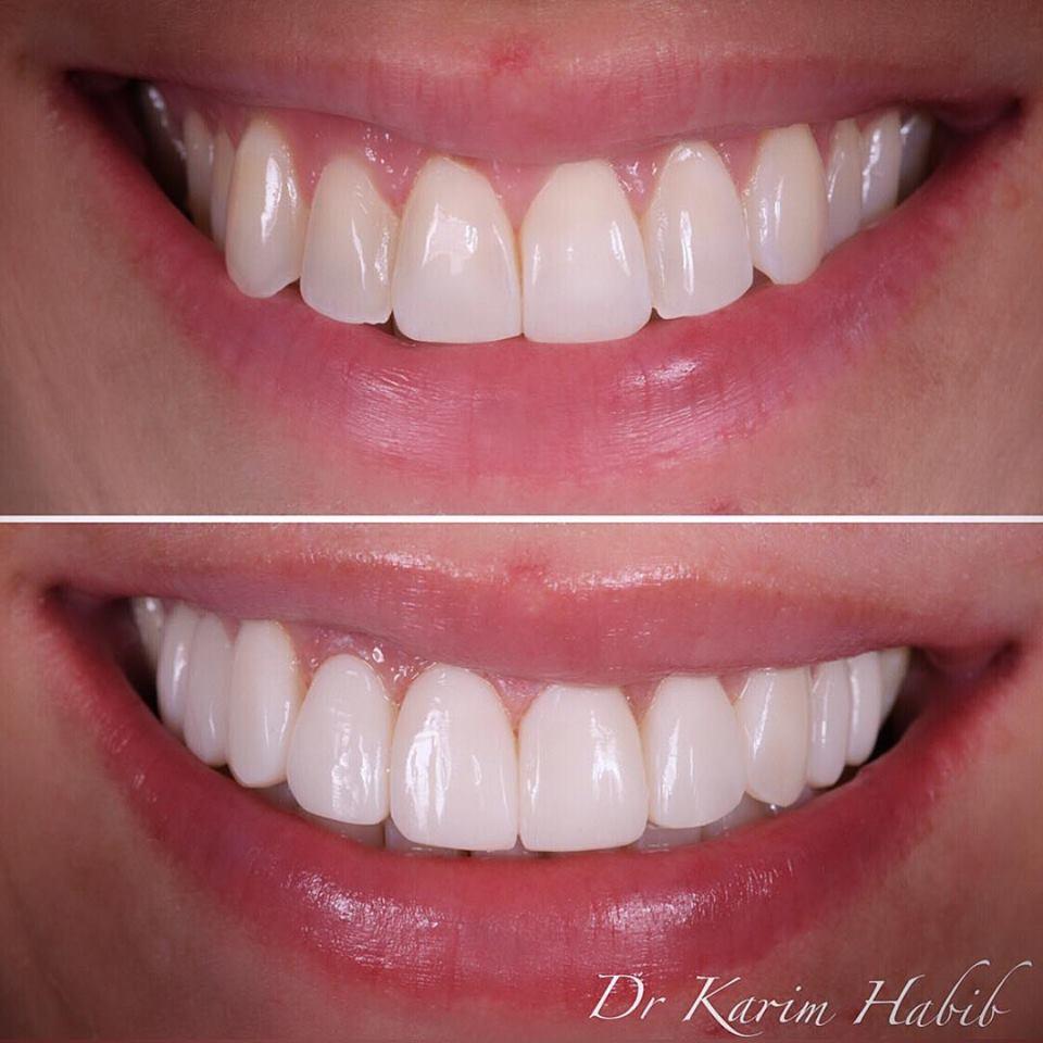 Natural Sydney composite dental veneers