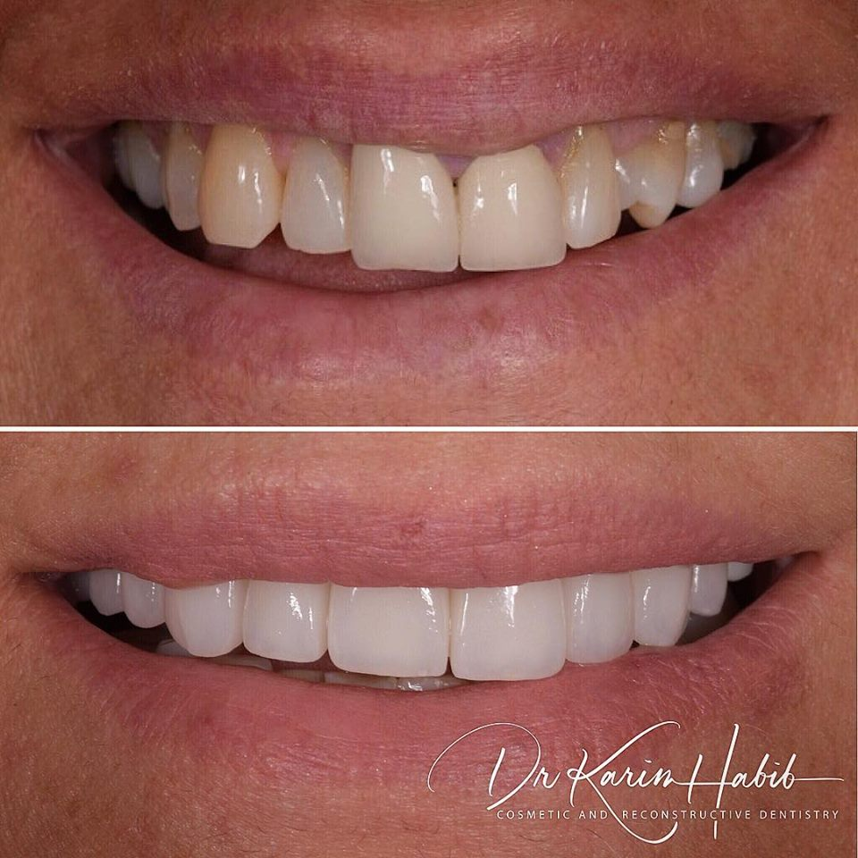 Cosmetic Dentistry Sydney