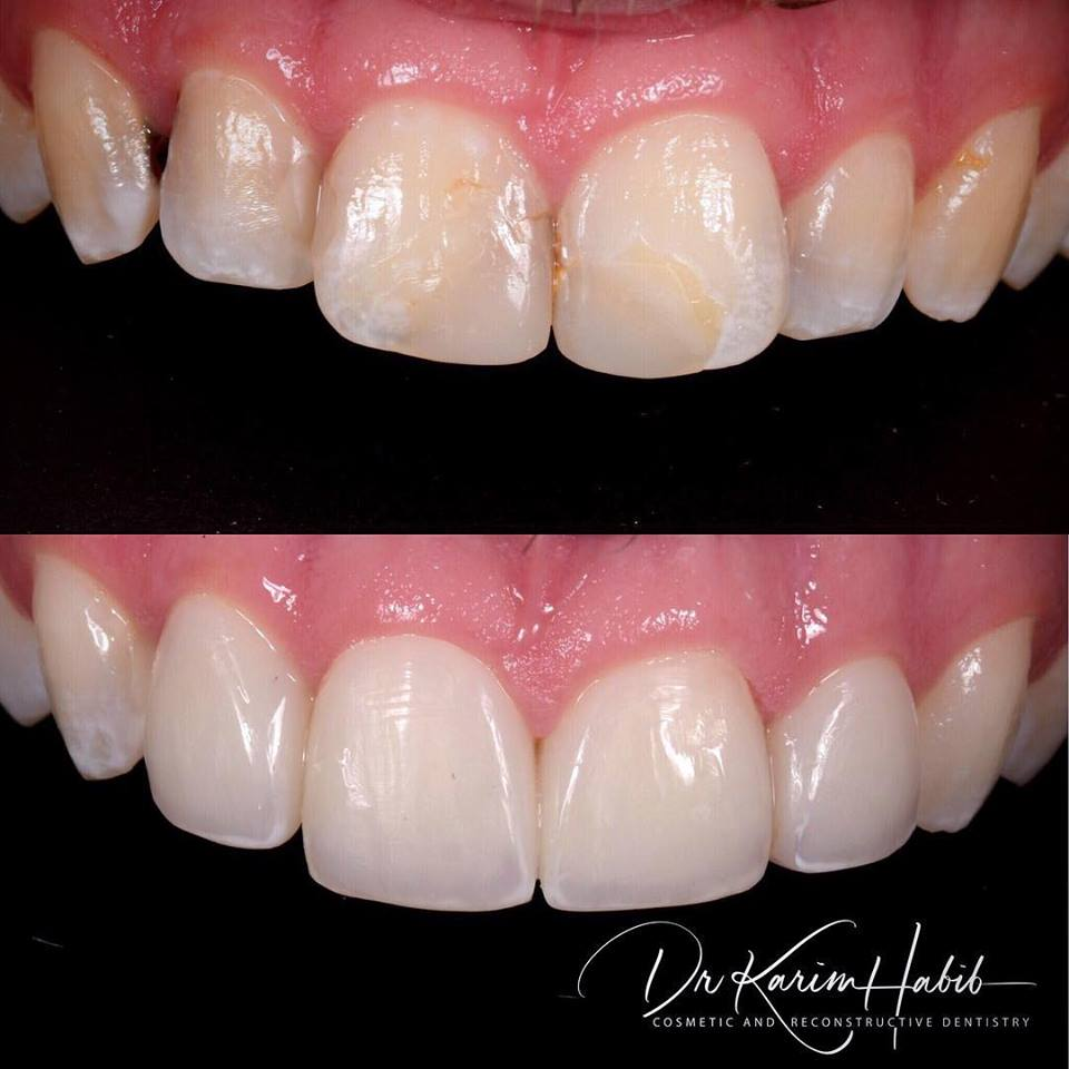 Natural looking veneers in Sydney