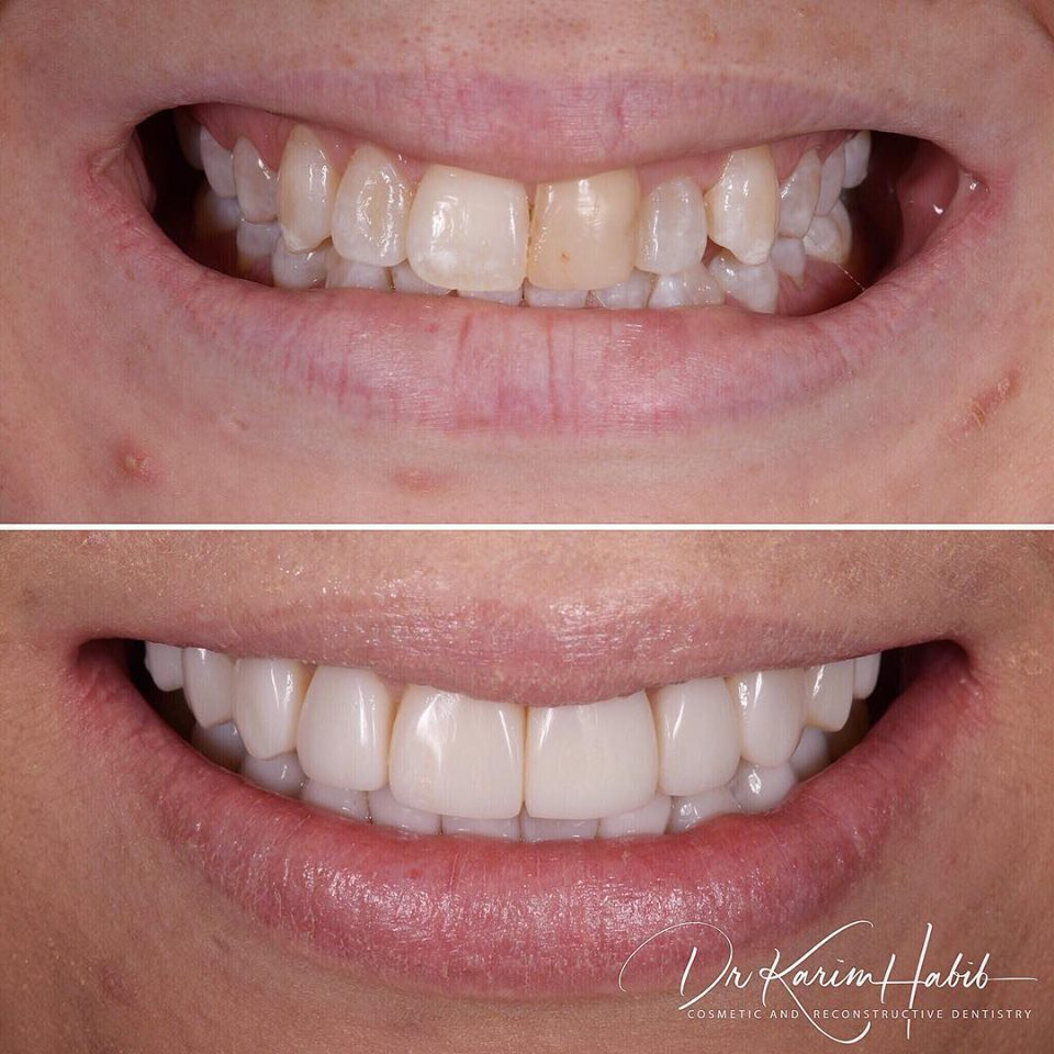 Composite veneers Sydney Smile makeover