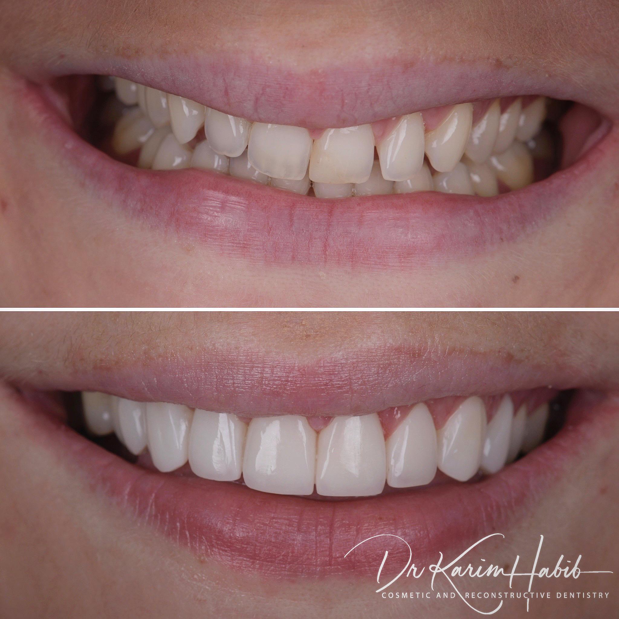 Composite Veneers Smile
