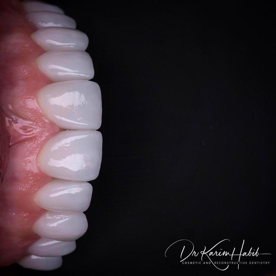 Porcelain Veneers by Sydney Cosmetic Dentist, Dr Karim Habib