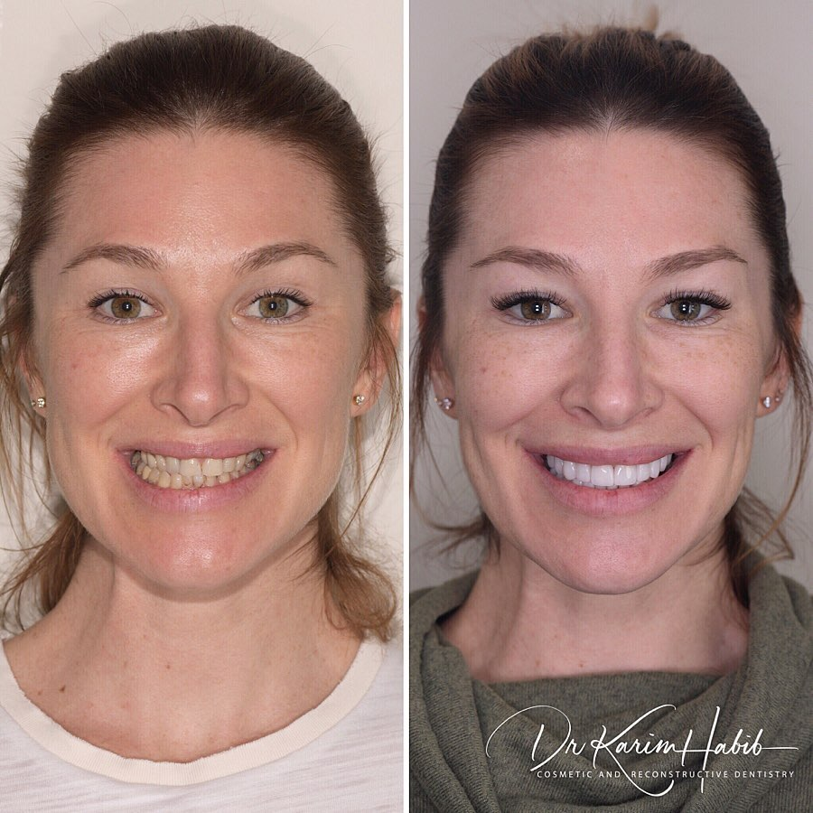 Smilemakeover Expert Sydney Cosmetic Dentist