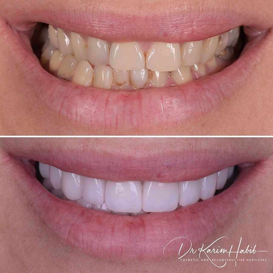 Fine Cosmetic Dentistry