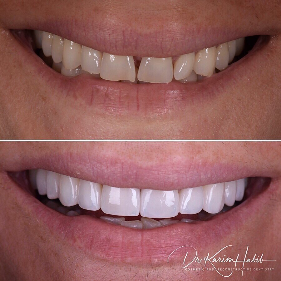 Cosmetic Dentistry Veneers in Sydney