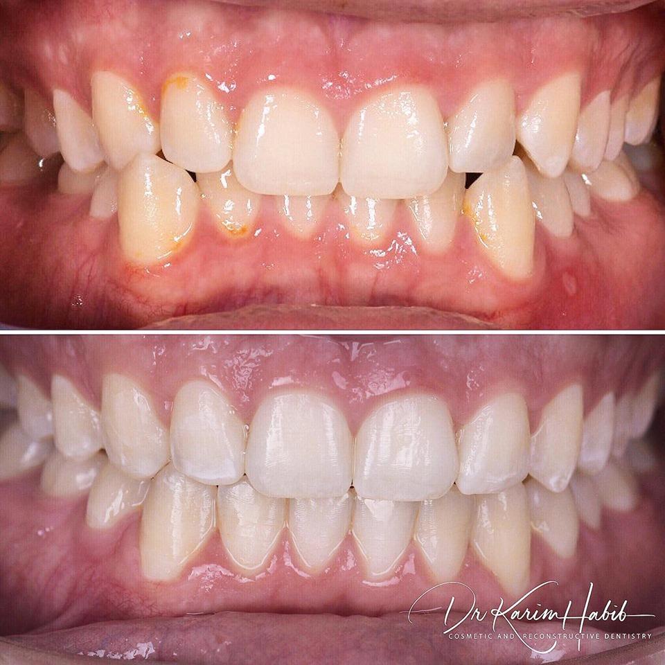 Invisalign Sydney Dentist