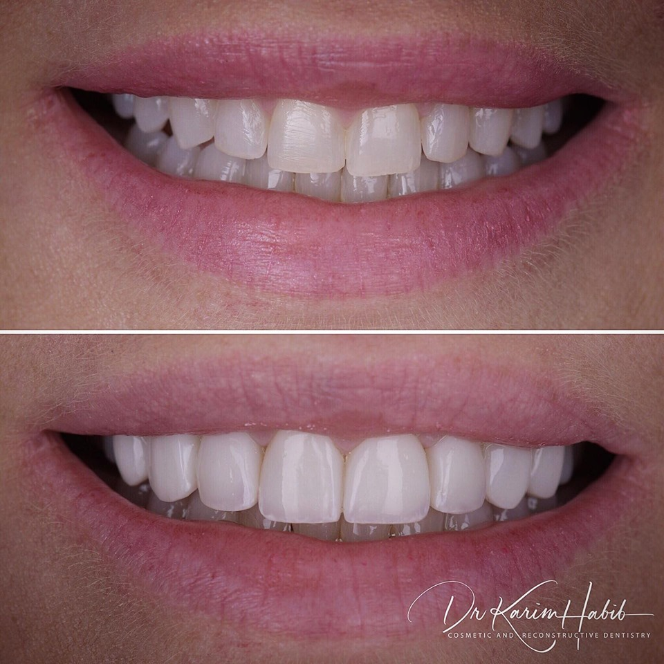 Best Composite Veneers dentist in Sydney