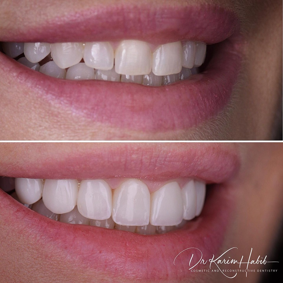 Composite Veneers Cosmetic Dentistry Sydney