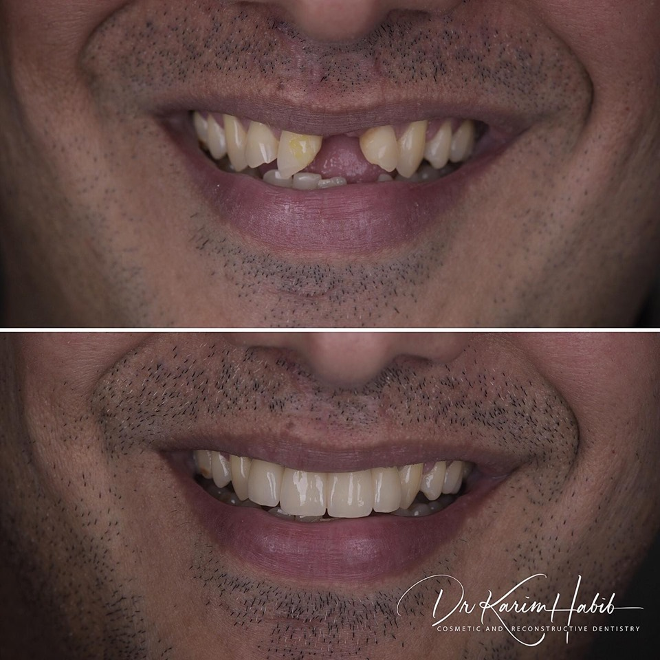 Dental Accident missing tooth