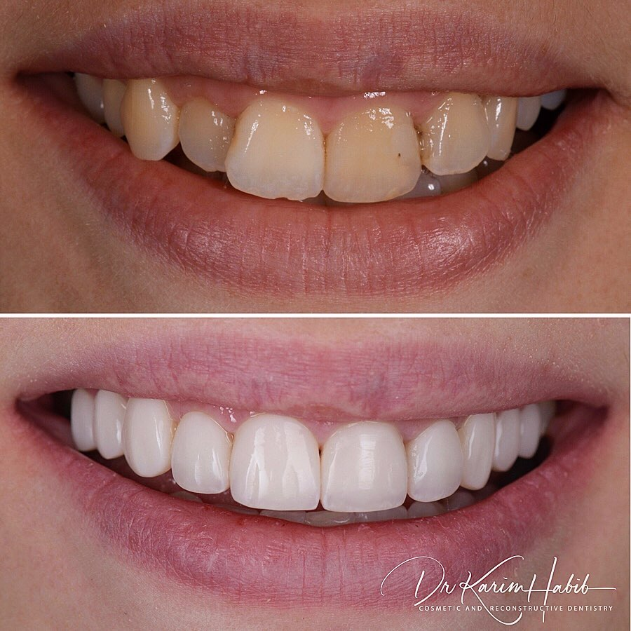 Invisalign crowded teeth and Veneers