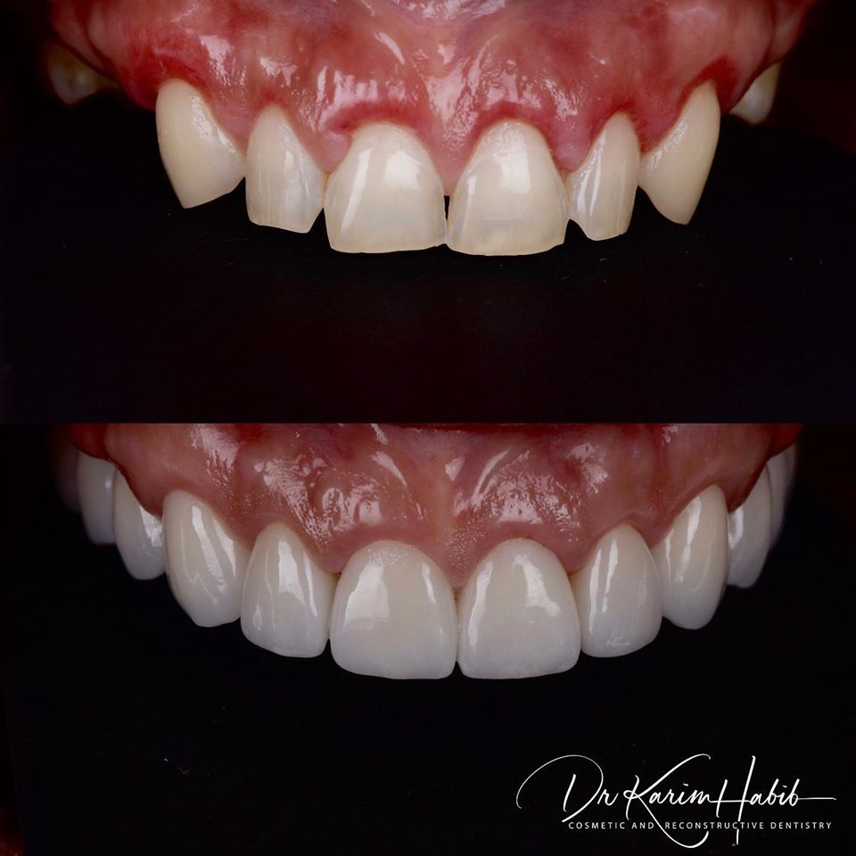 High Quality Porcelain Restorations