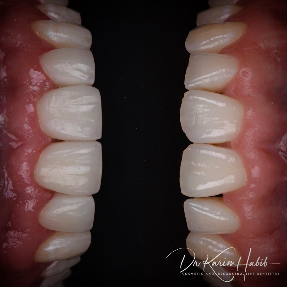 Dental bonding, chipped tooth