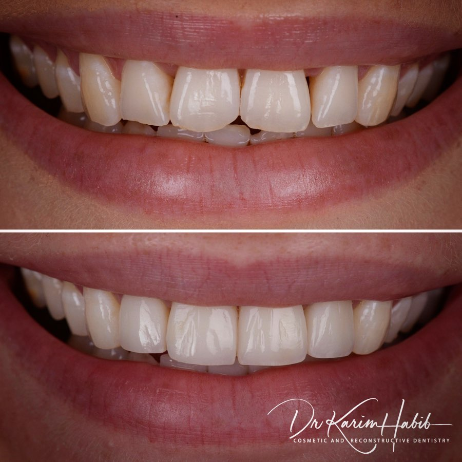 Dental bonding Sydney Experts