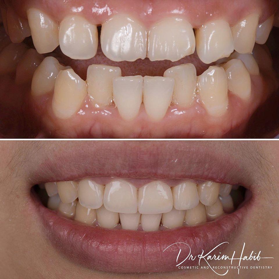 Crooked Teeth Invisalign Sydney