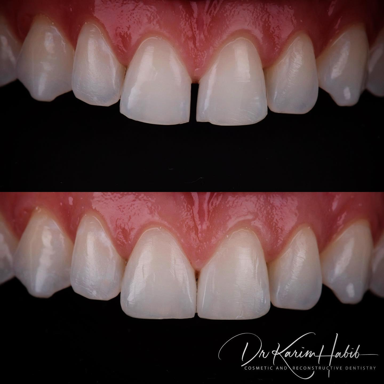 Closing Gaps with dental bonding