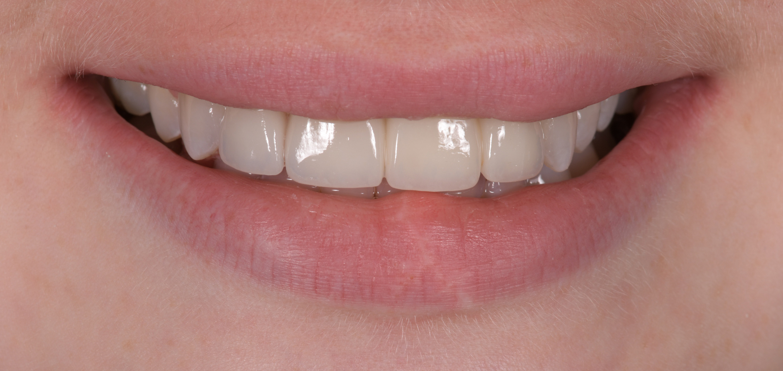 Natural cosmetic Dentistry in Sydney