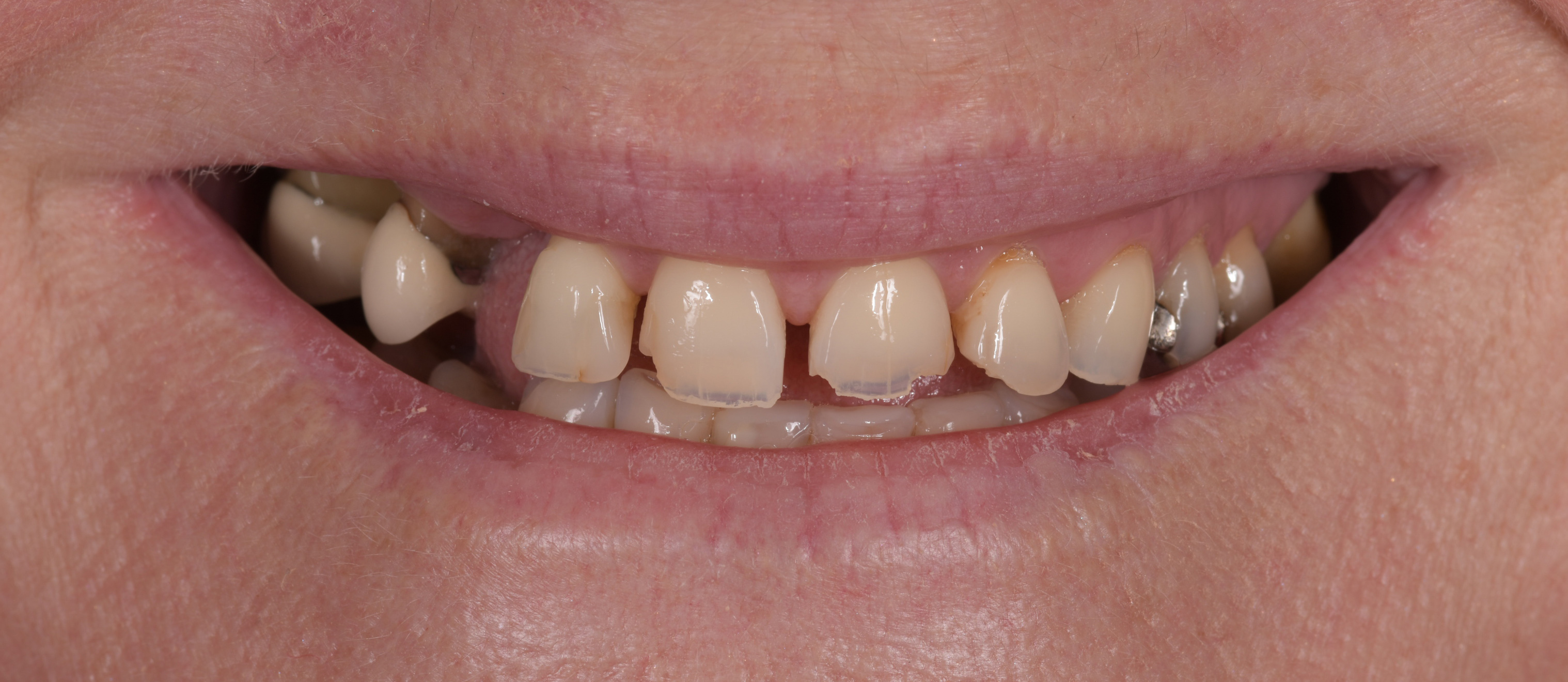 Worn down teeth to be fixed with dental crowns