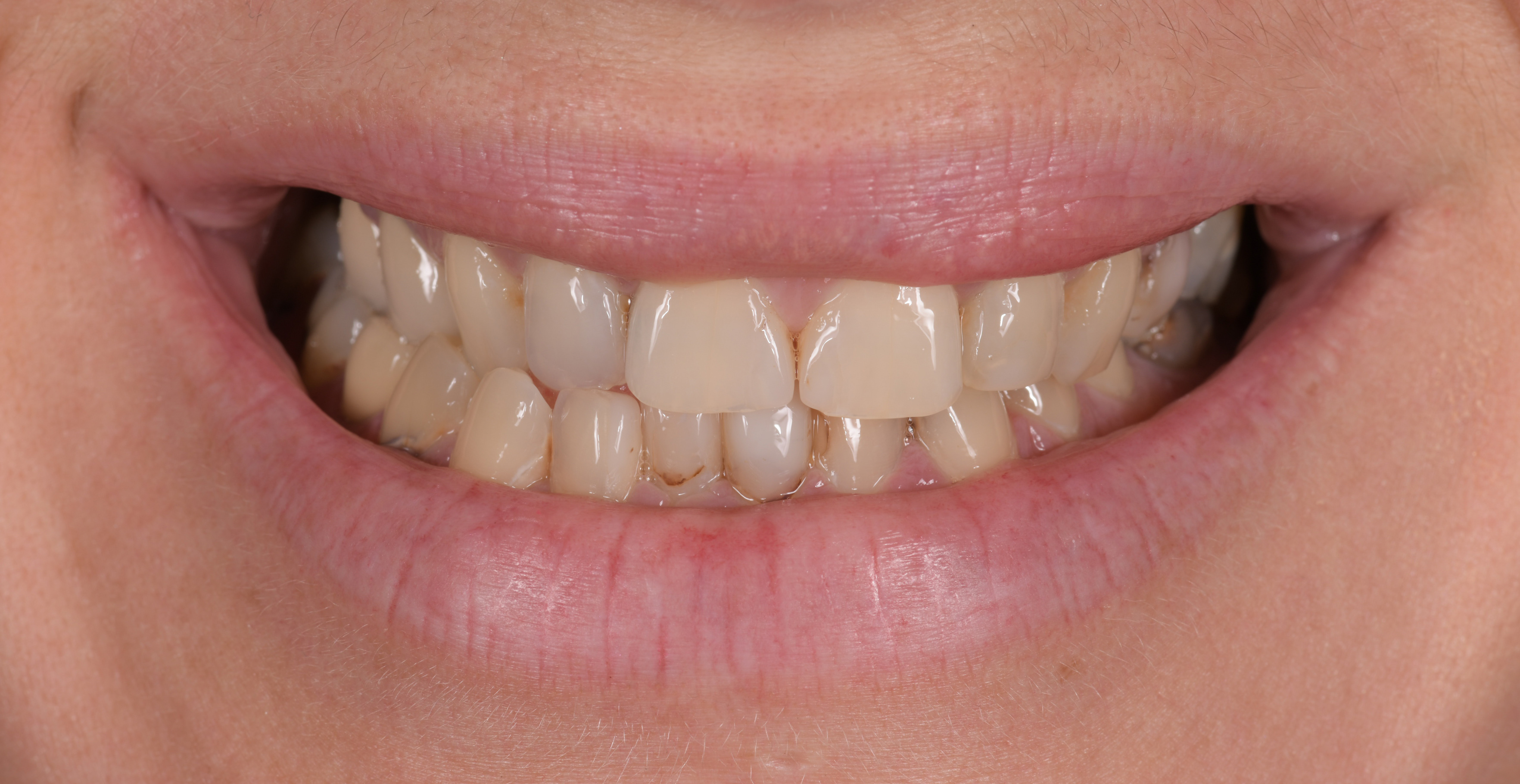 Complete Smile Makeover Teeth Sydney
