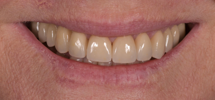 Porcelain crowns and veneers Sydney