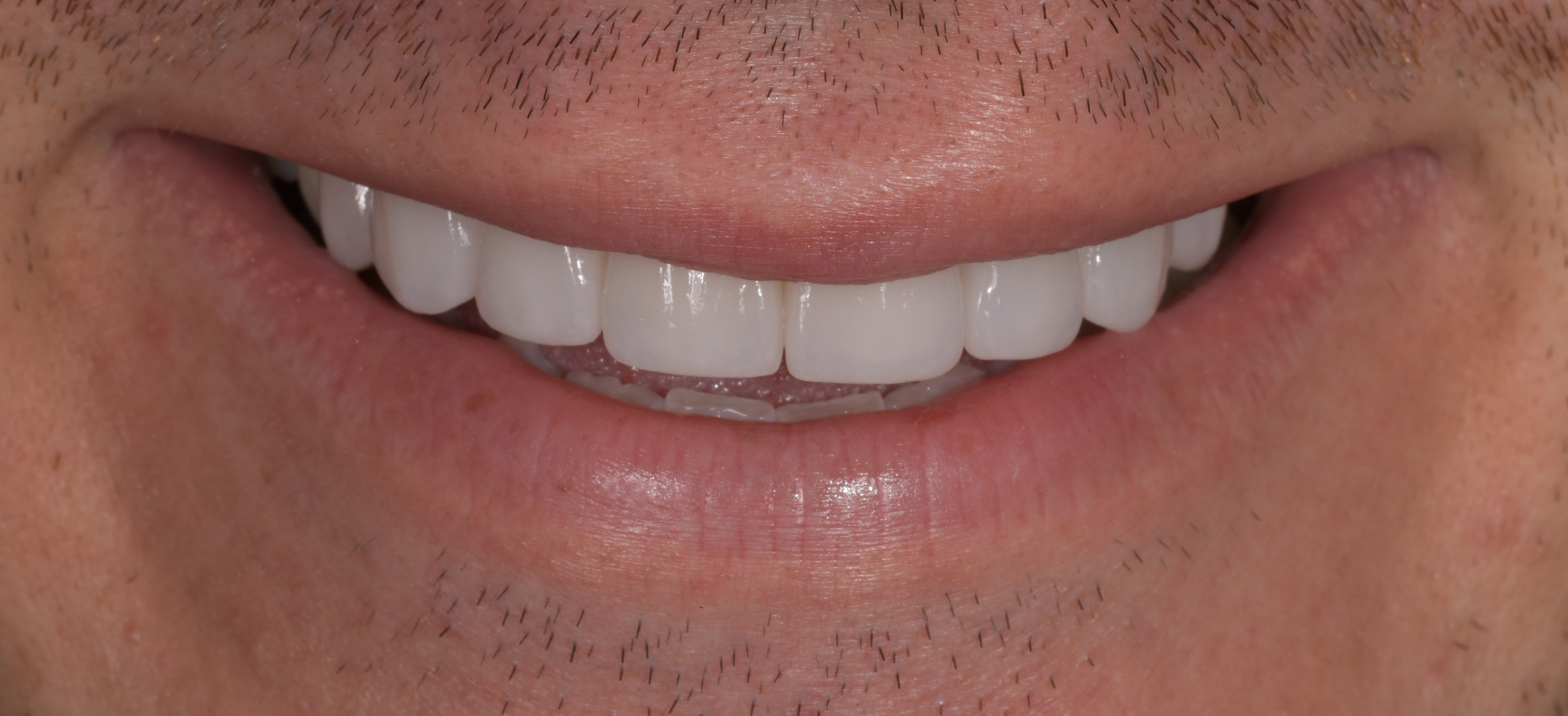 New smile with Porcelain Veneers in Sydney