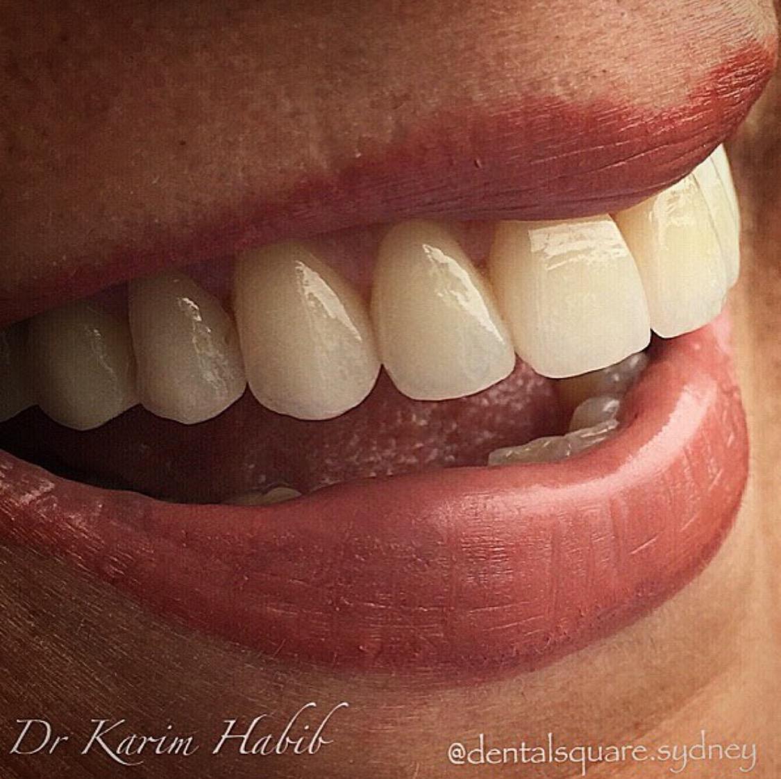 Porcelain Veneers Sydney Teeth