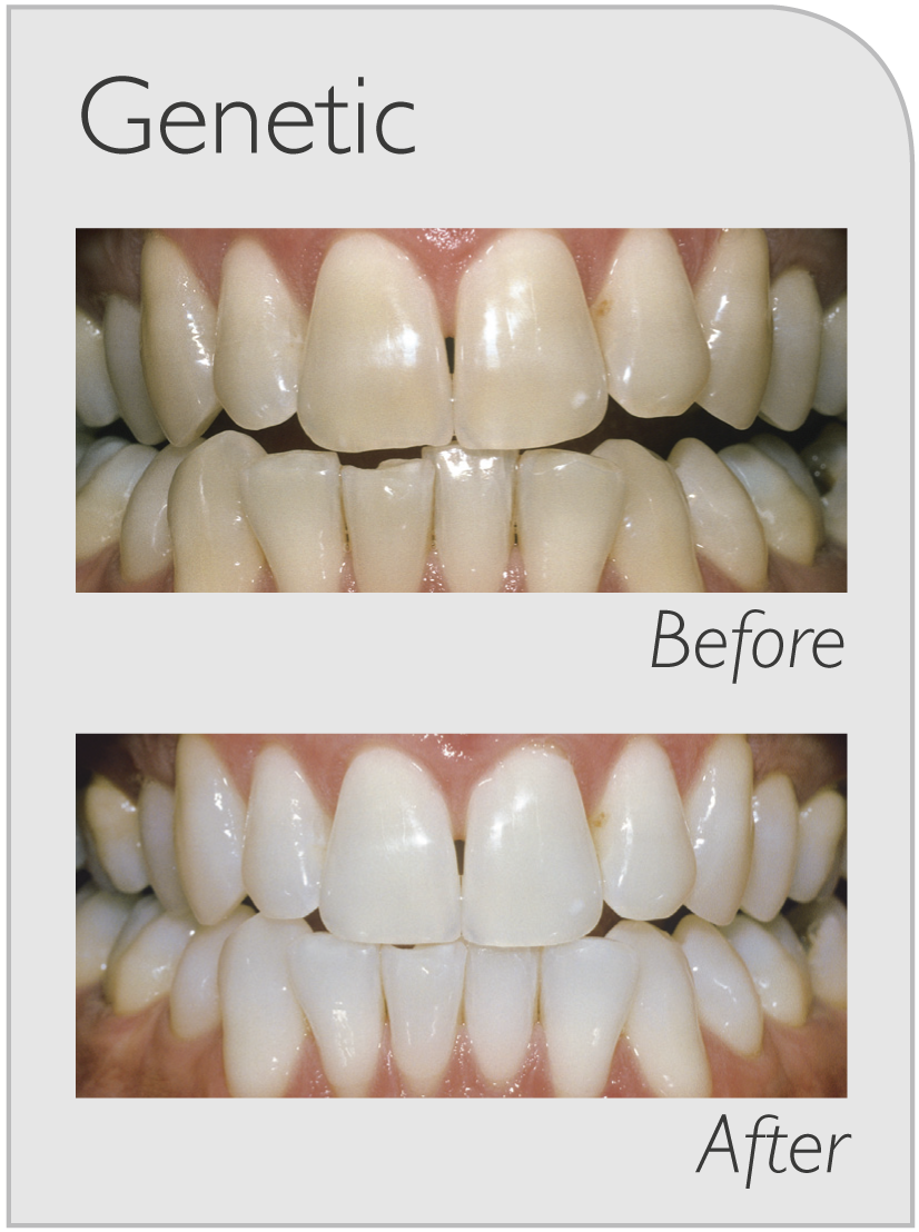 professional teeth whitening ryde