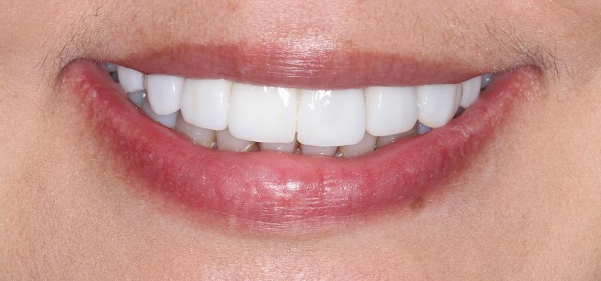 Dental Veneers Sydney Dr Karim Habib