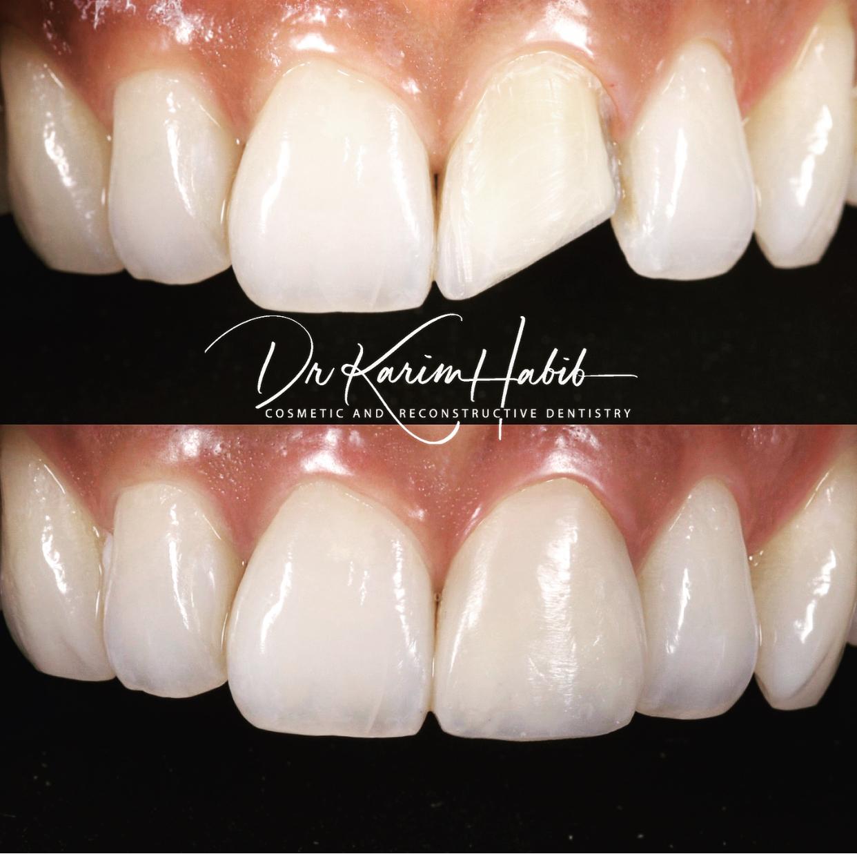 Fractured tooth Repair in Composite