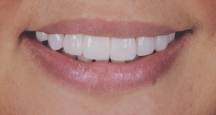 Cosmetic Dentist Veneers Sydney