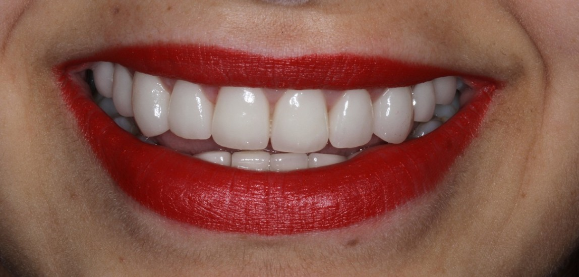 complete Smile makeover by Sydney cosmetic dentist