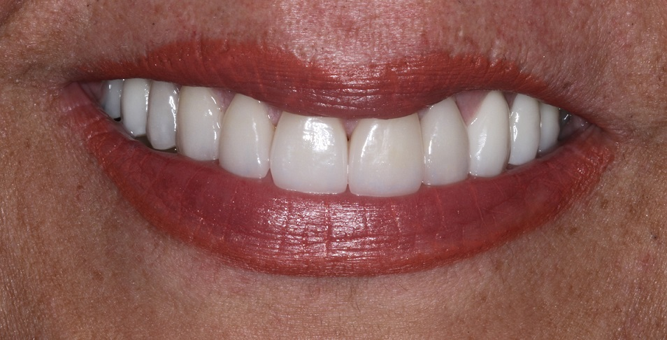 Smile Makeover, Cosmetic Dentist Sydney