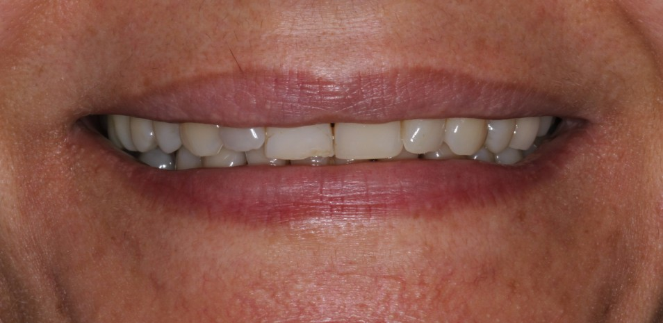 Short teeth stained treatment with porcelain veneers in sydney
