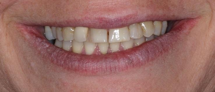 Before Dental Veneers Sydney