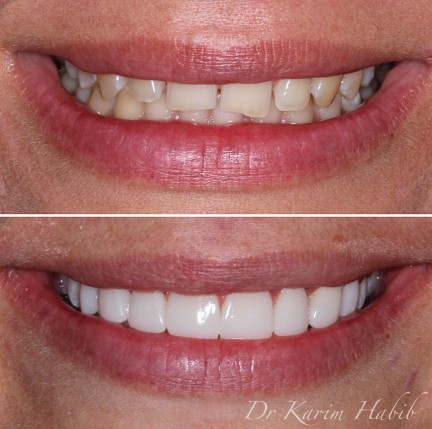 Compsosite resin veneers sydney