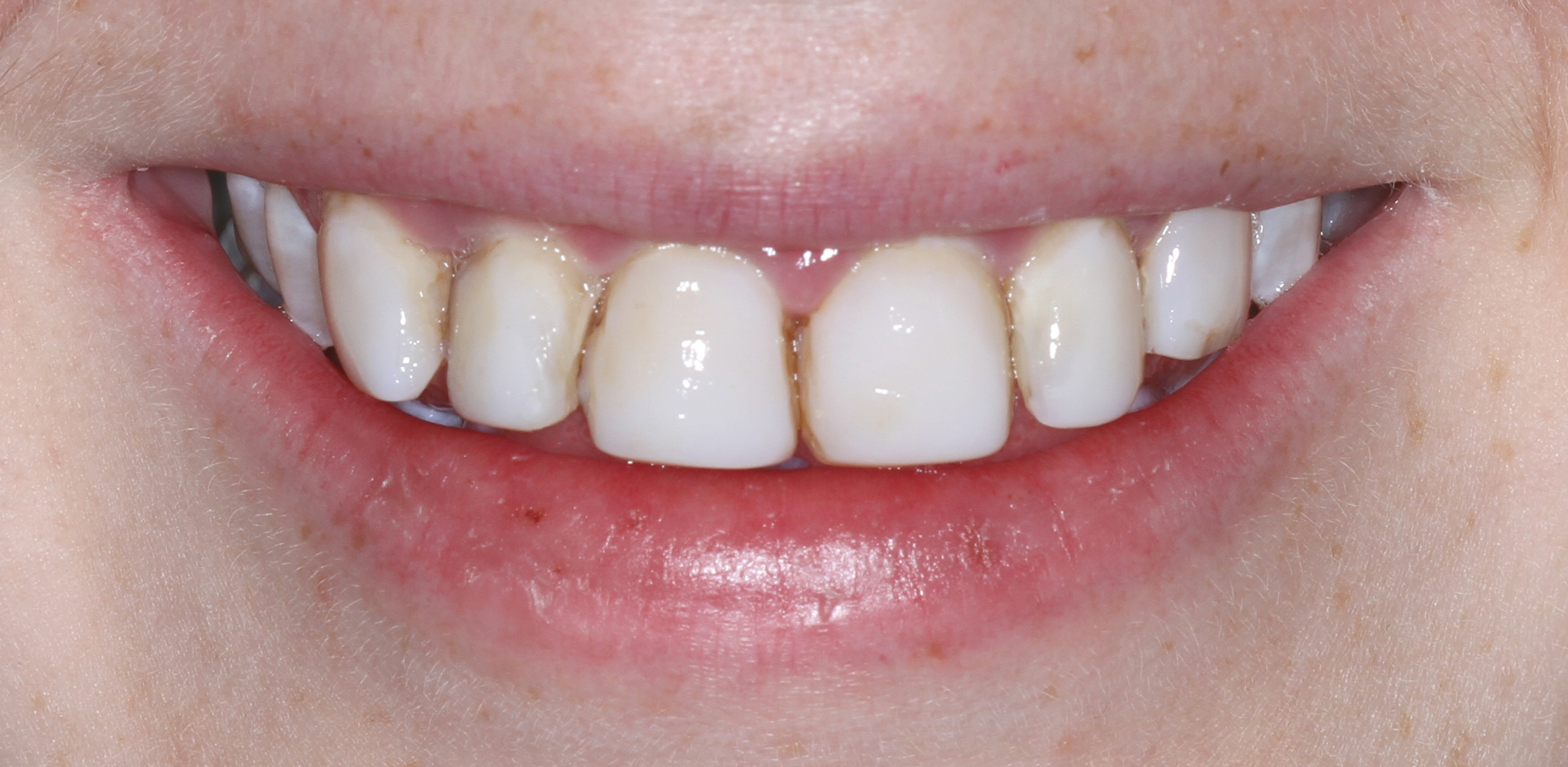 Before treatment by Sydney Cosmetic Dentist