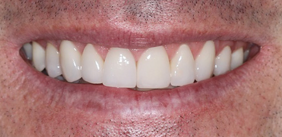 Cosmetic Dentist in Sydney smile Makeover
