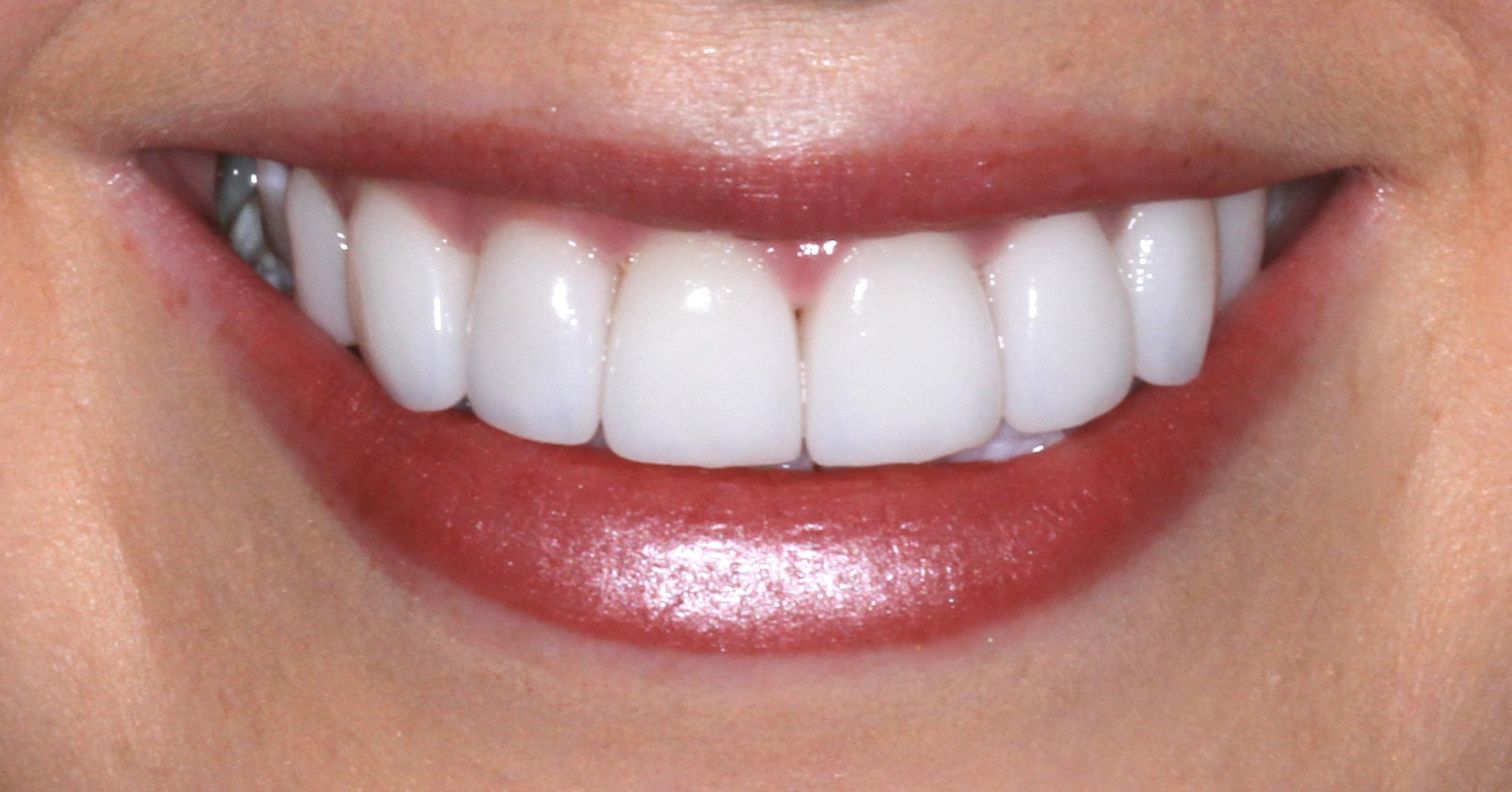 After the best dental veneers sydney