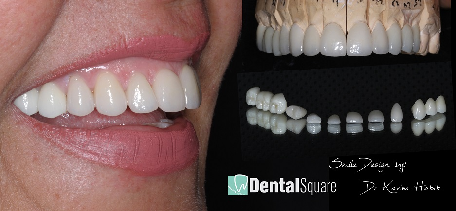 Best quality Cosmetic Dentistry Sydney