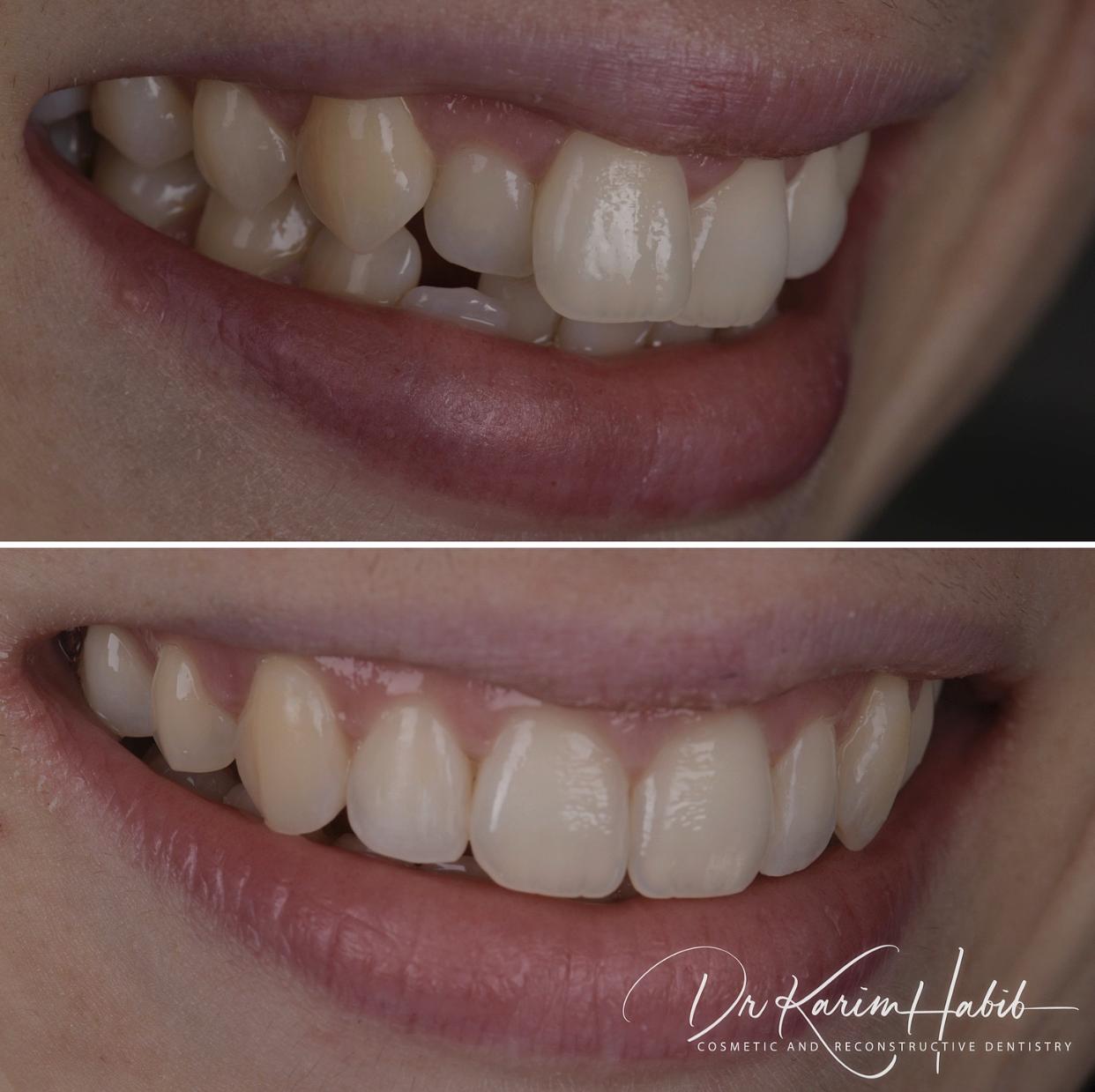 Cosmetic Dentistry invisalign