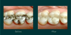 white fillings dentist ryde