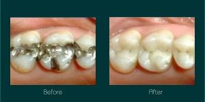 white fillings dentist ryde