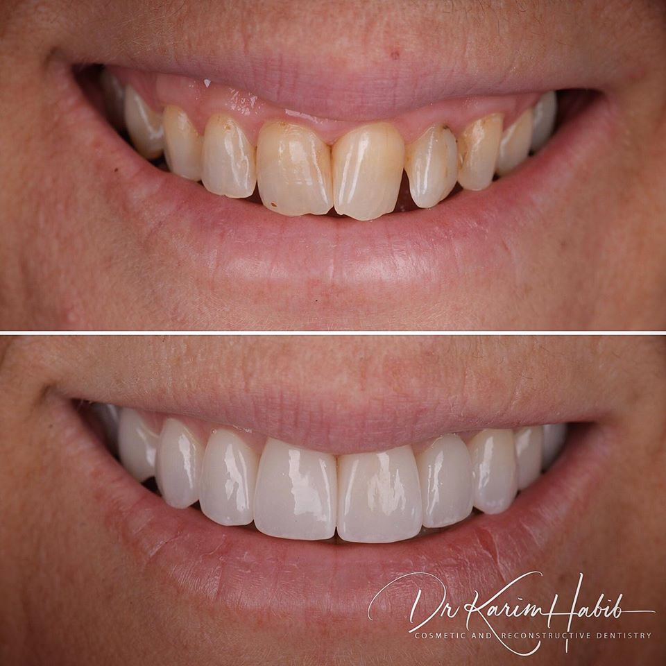 Cosmetic Dentist Sydney Veneers