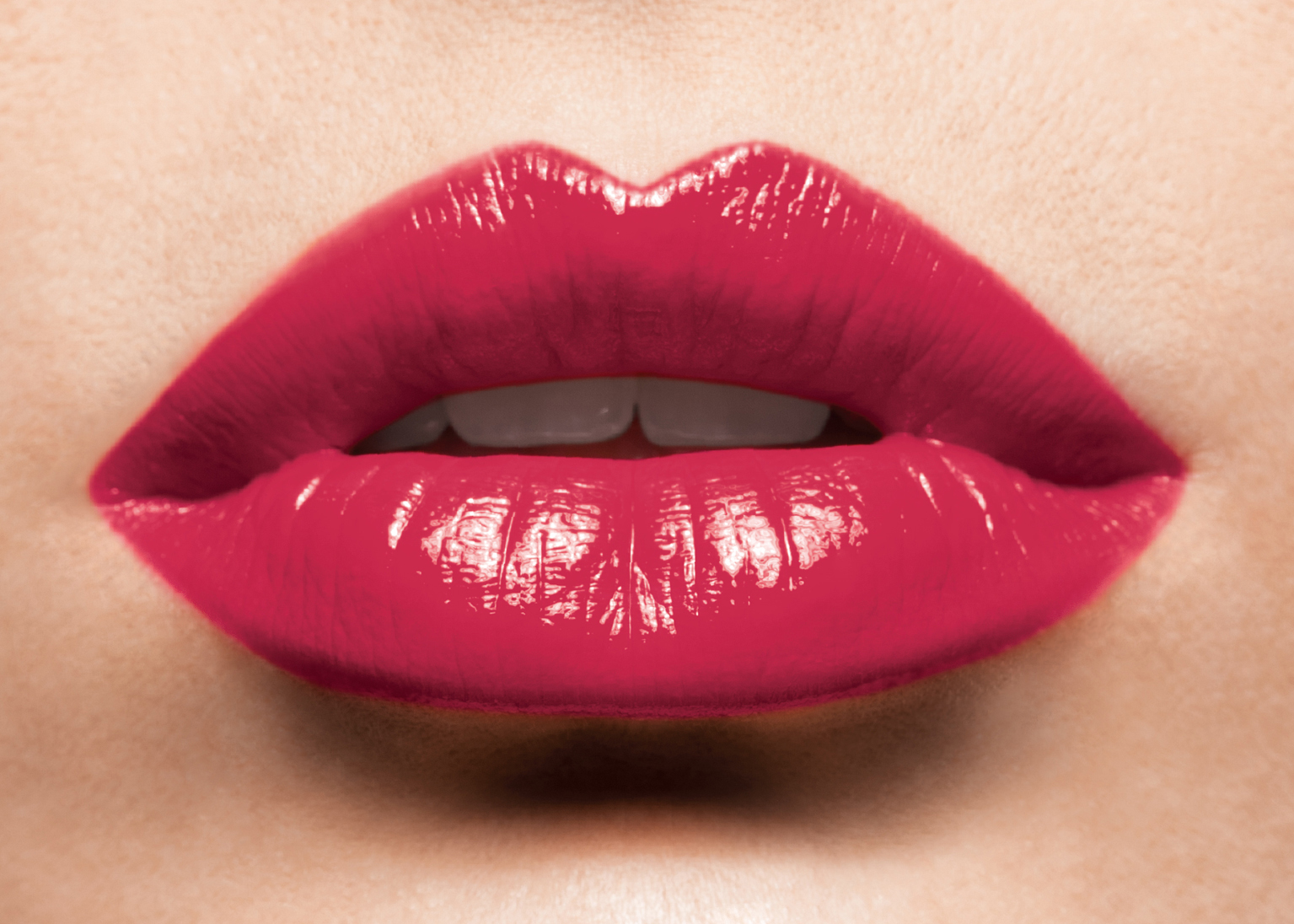 Lip fillers ryde gladesville north ryde