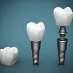 All-About-Dental-Implants