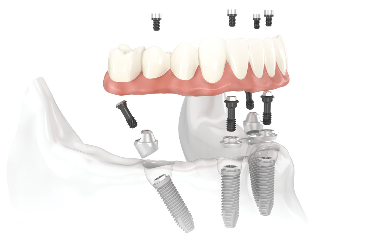 Dentistrydeimplants