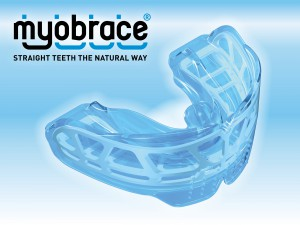 Myobrace-Image-300x225
